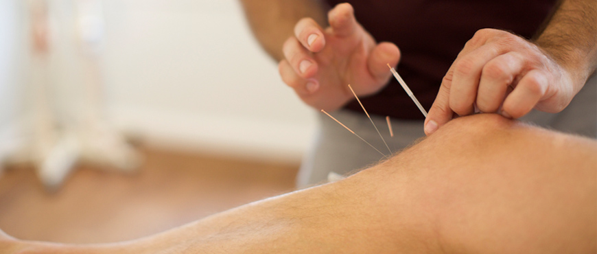 Find Acupuncture Treatment In Brampton